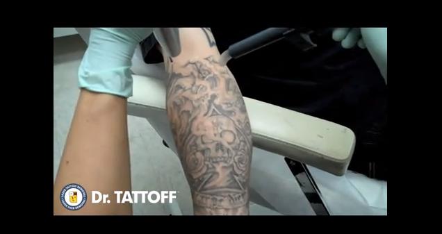 Jak usunąć tattoo tatuaż